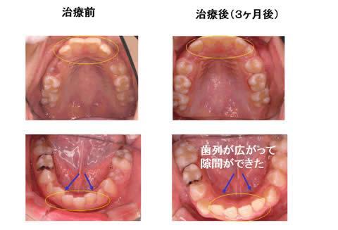 治療前後の比較です。顎の発育を生かすことで、自然な歯並び・かみ合わせを獲得することが出来ました。