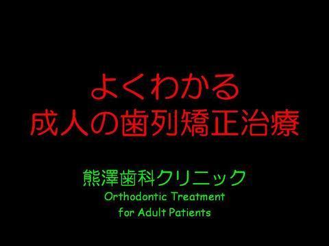 最近では、身近に矯正治療を受けられているかたも多いかと思います。では、矯正治療とは、実際にはどのように行われ、どういう経過をたどるのでしょうか?当院での症例をごらんいただいきたいと思います。