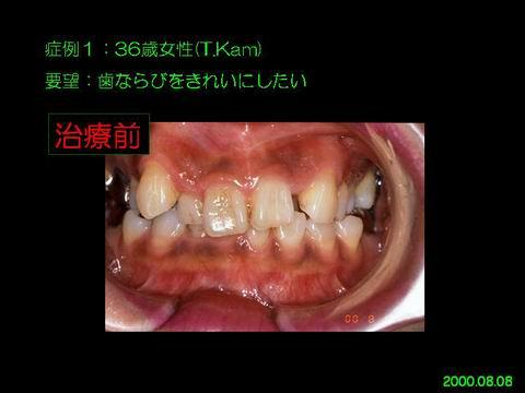 矯正治療は、子供が行うもので、大人では無理だと思っている方も多いかと思います。しかし、成人の方でもきれいな歯並びを得ることが可能です。上の写真の患者さんは、かねてより歯並びの悪さを気にされていましたが、当院受診をきっかけに矯正治療を受けられることになりました。