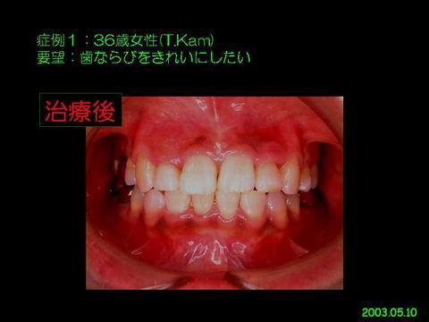 矯正治療後、2年8ヵ月後の状態です。先にあげた問題点が解決されきれいな歯並びになっているのが、ごらんいただけると思います。患者さんは、小さいころからのコンプレックスが解消され、大変喜んでいられました。