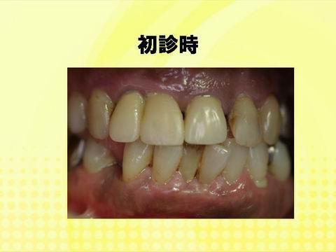 患者さんの初診時のお口の中の写真です。歯と歯茎の境に汚れが見られます。また前歯に隙間があったり、下の歯の歯並びが悪いのがお分かりいただけると思います。歯周病の典型的な口腔内といえます。