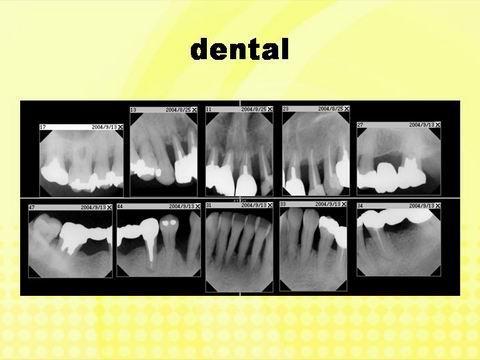 この方のレントゲン写真です。歯を支えている骨の高さが、低くなっています。これは、歯周病による炎症のために、歯を支える骨が吸収してしまっているために起こります。歯周病の恐い所は、このような状態になっても患者さん自身が痛みを感じたりすることがほとんど無いことです。そのため、歯科医院受診がどうしても遅くないがちなのです。