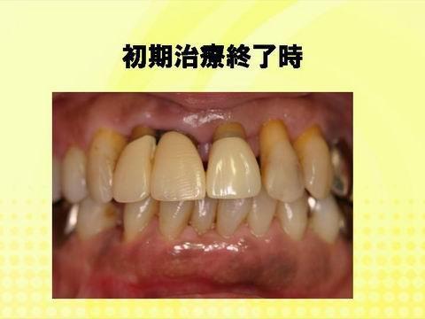 まず、一般的な歯周病の治療を行いました。患者さんのブラッシング、歯科衛生士・歯科医師による治療により、炎症は落ち着いてきました。一見前歯が長くなり、歯茎がやせてしまったように見えます。しかし、これが歯周病の炎症を抑えたと時に現れる、その方の現在の歯を支える骨にとっては最適な状態なのです。でも、健康な歯茎が得られても見た目が悪いのは、望ましくは無いですよね。そのためこの方は矯正治療を選択しました。