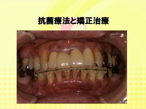 歯周病治療の効果をより高めるため、抗生剤による歯周治療も併用しました。この治療法は、最近歯科会で話題になっている方法で、患者さんによっては非常に良い結果が得られます。同時期に下の前歯の歯並びを直すこととしました。きれいな歯並びにすれば、見た目はもちろんのこと、その後の歯ブラシもしやすくなり、歯周病の再発を防げます。