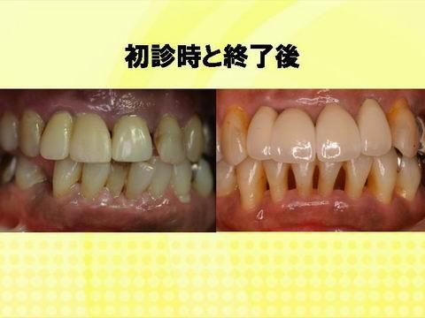 初診時と、治療が一段楽ついた時の写真です。歯並びも良くなり歯茎の色も健康なピンク色になりました。