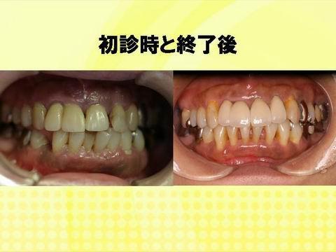 全体的な歯並びを比べた写真です。口元全体がきれいになっていると思いませんか?矯正治療によりきれいな歯並びにすることはお口の中の見た目を良くするだけでなく、機能的にも良い状態を作ることができます。この症例をみて、私も以前から歯並びが気になっていた。大人なのでもう無理とあきらめていた。そんな方は、ぜひ担当の先生に相談してみてください。小樽熊澤歯科クリニックの矯正専門医が相談に乗ります。