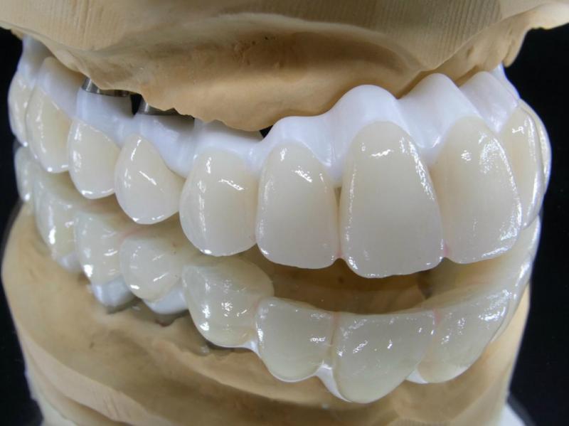 土台の上にセラミックの人工の歯を装着します。