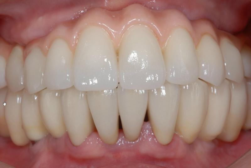 装着した写真です。歯茎の足りないところは、ピンクのセラミックを用い自然な歯並びが回復しました。