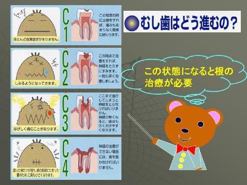小樽熊澤歯科クリニックでは、さまざまな治療にマイクロを使用していますが、ここでは、歯の根の治療に使う例をお見せします。進行した虫歯の際に歯の根の治療が必要になります。