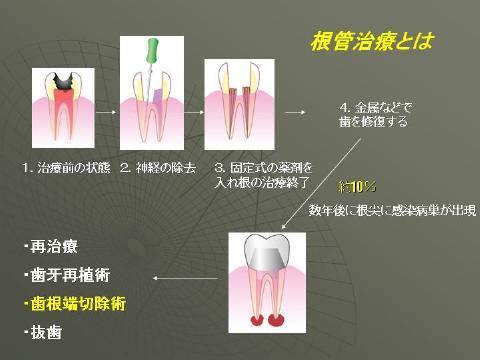 根の治療の、成功率は世界中のデーターを平均すると90%ぐらいと言われており、<br />10%の歯に関して年数がたってから何らかの再治療が必要になるといわれています。