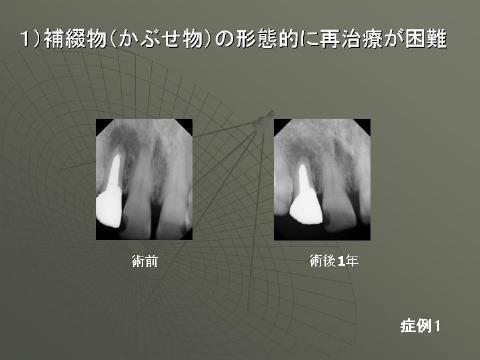 小樽熊澤歯科クリニックでの治療例をお見せします。