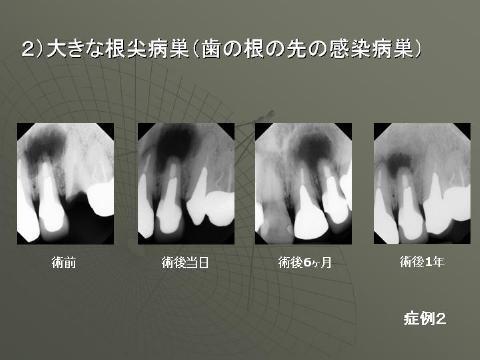 病巣が大きい場合骨の治癒にはかなりの時間がかかります。
