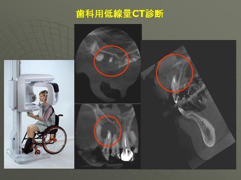 さらに、最近では術前の診断として必要性が高いと判断した場合は歯科用CTを撮影する場合もあります。より精密な診断が可能となります。