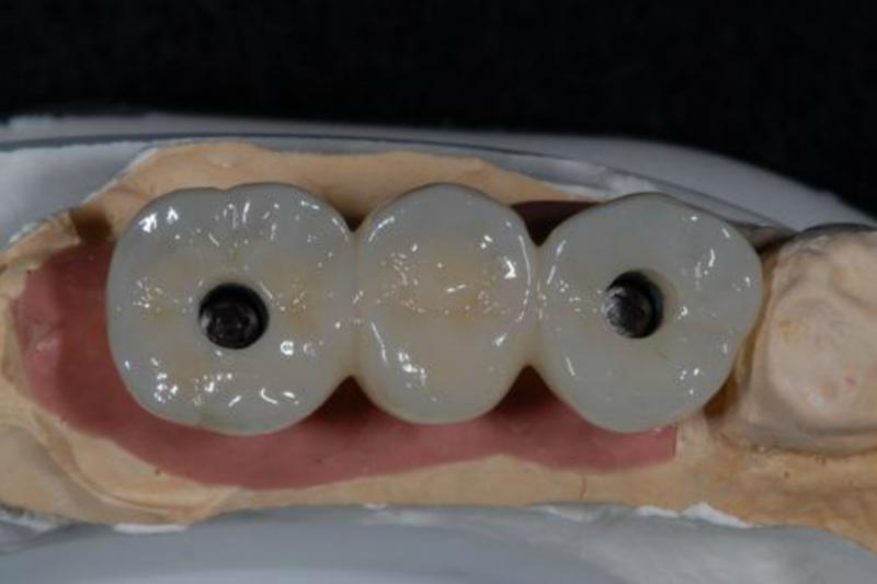 仮歯を使用してもらいかみ合わせを確認します。