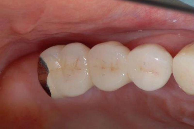最終的な冠を口腔内に装着しました。<br />患者さんのかみ合わせの強い場合、一部金属を使います。