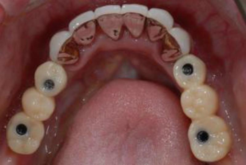 お口の中に最終的な冠を装着しました。<br />固定式の歯が装着されました。