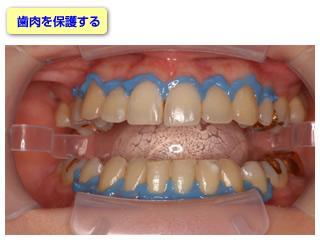 歯肉に漂白剤が付着しないように青色のカバーをかけます。