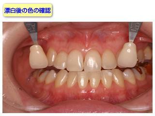 処置後の歯の色を写真をとって記録します。