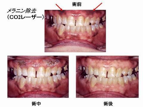 このスライドは、歯茎の色素沈着を気にされていた患者さんに対するレーザーによる治療です。数回レーザーを当て、色素沈着のある歯茎を蒸散させると綺麗な歯茎になります。<br />このように小樽熊澤歯科クリニックには、様々なレーザー治療器がありいろいろな場面で活躍しています。