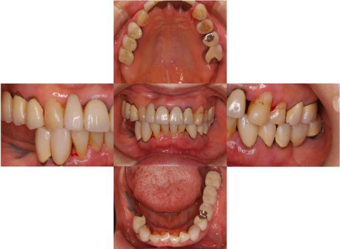 初診時の口腔内の写真です。