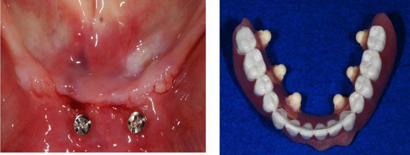 下顎の写真と、CTを撮るための装置です。