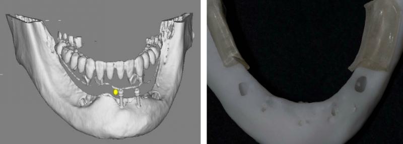 CTをもとに下顎の模型を作成しました。