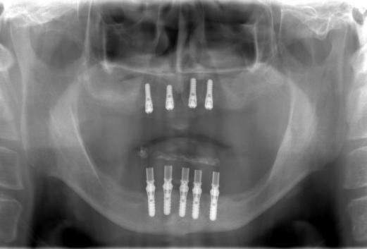 インプラント埋入後のレントゲン写真です。