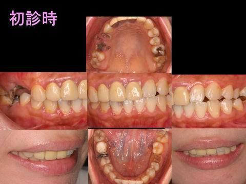 こちらが、治療前のお口の中の写真です。一見するとそれほど問題はないようですが、患者さんはいくつかの不満点をお持ちでした。よく見ると前歯(被せ物の歯の色と形に不調和があります。