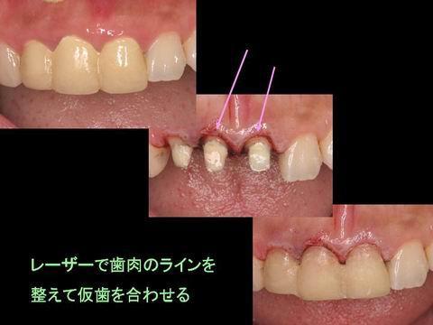 前歯3本の古い被せ物の歯をはずし、レーザーで歯肉のラインを整え、仮歯を調整します。