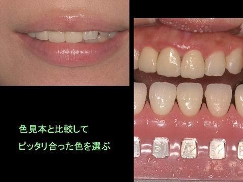 沢山の色見本の中からご自身の歯の色にあった物を選びます。 いろいろな角度から規格写真を撮って、歯を実際に作る技工師さんにデーターを渡します。場合によっては、技工師さんに実際に口元を見てもらうこともあります。そのようにして周りの歯と自然に調和する色を作ります。