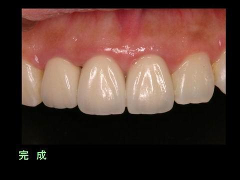 完成時の写真です。 どこが治療した歯(人工物)でしょうか。
