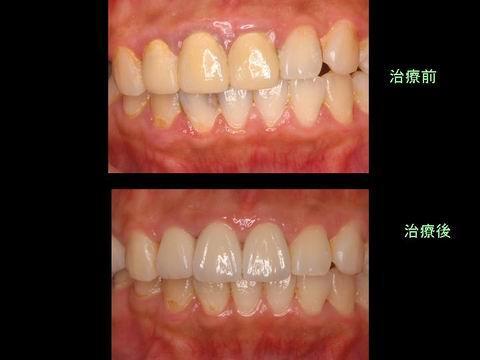 治療前後を比べると変化がわかると思います。 歯のバランスや色の調和が取れているのがお分かりいただけると思います。