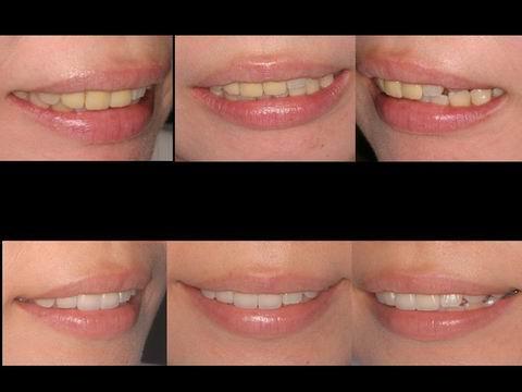 笑ったときの口元の変化を比べた写真です。歯の形を整えることで笑顔の際の口元の感じが、よくなったことがお分かりいただけると思います。