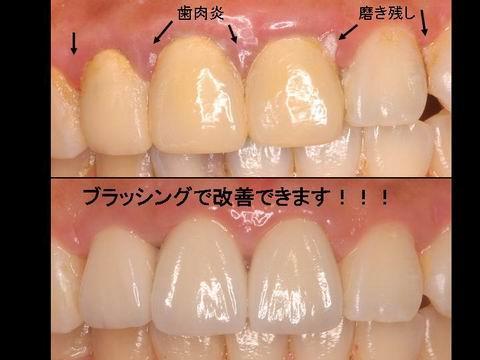 美しい口元の維持のためには、ご自身での適切な清掃や、歯科衛生士による機械的清掃も重要です。歯茎の赤みや腫れた感じが取れているのがお分かりいただけると思います。前歯の見た目が気になる方・自分の笑顔に自身を持ちたいとお考えの方は担当の歯科医師・衛生士にご相談ください。
