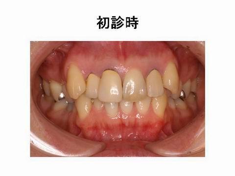 こちらが、治療前のお口の中の写真です。一見するとそれほど問題はないようですが、患者さんはいくつかの不満点をお持ちでした。そこで次の項目を検討し、セラミックを用いた修復を行うこととなりました。