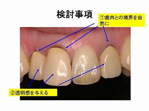 前歯4本のうち一本だけが、自分の歯。他の歯は一般的な保険内でのかぶせ物が入っています。この材料は、作った当初は綺麗な色を再現できますが、使っているうちに透明感がなくなりくすんだ色合いになるという欠点があります。また、歯茎との生態親和性に乏しいため歯茎が下がってしまいます。