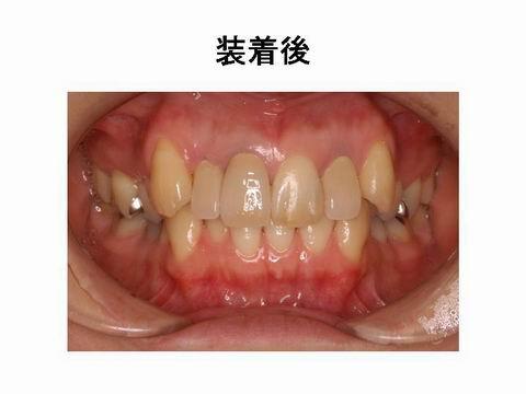 治療後の写真です。かぶせ物を自分のもともとの歯の色に合わせてセラミックで直しました。