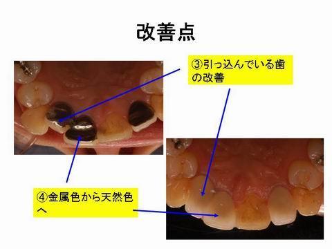 裏から、見たところです。歯並びが悪かった所も改善しました。多少でしたら、かぶせ物で、歯並びをきれいにすることができます。裏から見ても金属がまったく使われていないのがわかると思います。