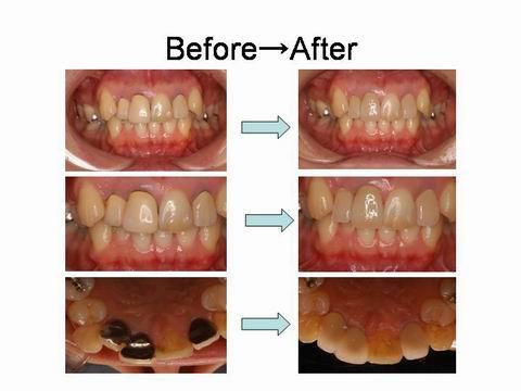 治療前後を比べた写真です。患者さんのご希望するレベルに合わせて、さまざまに治療が可能です。前歯の見た目が気になる方は担当の歯科医師・衛生士にご相談ください。