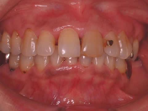 """60才代の女性の患者さんです。前歯に関しては色(もっと白く)と形(整然と)、歯並び(隙間をなくす)に関して不満がありました。奥歯に関しては""""ブリッジの部分が清掃しにくいこと""""と""""金属の色""""が不満でした。先ずは全体的な色調の改善をするために漂白をします。ホームホワイトニングといって、自宅で就寝前に1日2時間、2週間でこれだけ白くなります。"""