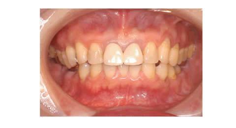 この患者さんは歯を今よりももっと白くしたいという希望で来院しました。歯を削らずに行う漂白を最初に試みましたが満足のいく白さまではいきませんでした。