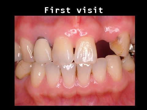 こちらは、小樽熊澤歯科クリニック初診におけるお口の中の写真です。現在の口の中の状況をご説明した後、治療のオプションを提示して、ブリッジを利用した修復処置をすることになりました。