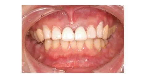 まず、一番手前の歯は元々冠をかぶせていたので仮歯にしました。<br />その隣の歯は歯を削らずにそのまま表面に色を塗って、どこまで白くしたいかを患者さんと相談しました。