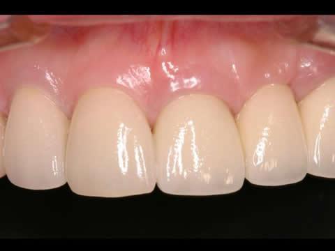 こちらが、治療後のお口の中の写真です。歯のない部分の歯肉にも適切なボリュームを与えることで、自然な歯並びはもちろん、歯肉の連続性を獲得することができました。以下に、治療のステップについてご紹介します。