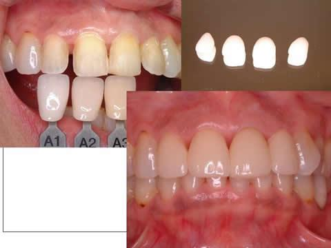 全体的に白くした前歯に対して、形と歯並びの改善を兼ねて、歯を一層(約0.5mmほど)削ります。削った後は色あわせをして(専門の歯科技工士に写真で伝える)、右上にあるように薄い貝殻状のセラミックを作ります。これを丁寧に歯に接着材で貼り付けます。この方法(ラミネートベニアと言います)は①歯を削る量が最小である、②かみ合わせを変えない、③金属を使用しないので色調が自然である、④セラミックは歯肉となじみが良い などの利点があります。