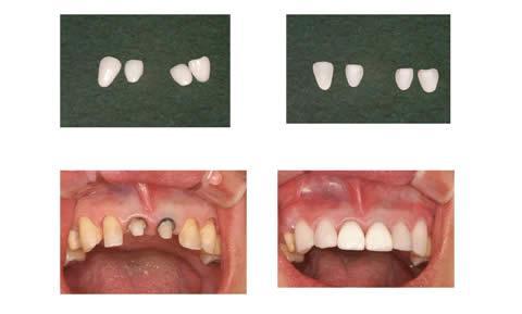 まずは手前から2番目と3番目の歯を表面だけ削るラミネートベニアを装着しました。