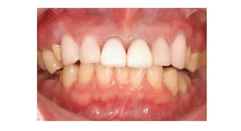 正面から見た写真で1番手前はまだ仮の歯です。