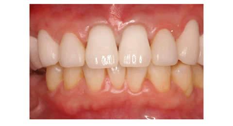 一番手前の歯は少し歯が長く見えるように調整して製作しました。