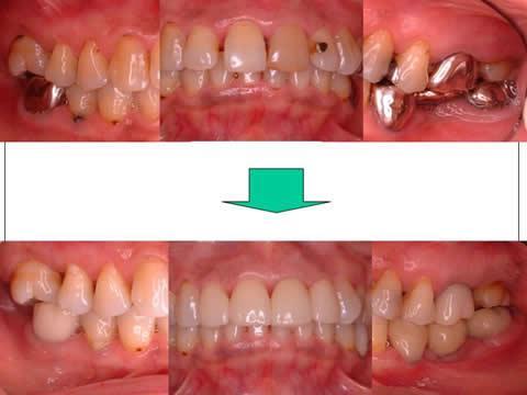 金属の色がない自然な修復が完了しました。患者さんは『同窓会では歯の自慢ができた(^^)』と喜んでくれました。