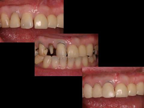 右上の歯は、通法に従い修復しました。